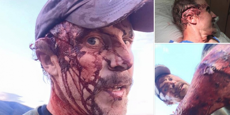 50letý Američan přežil útok medvěda. Následně vše natočil na video a podělil se o svou zkušenost se světem...