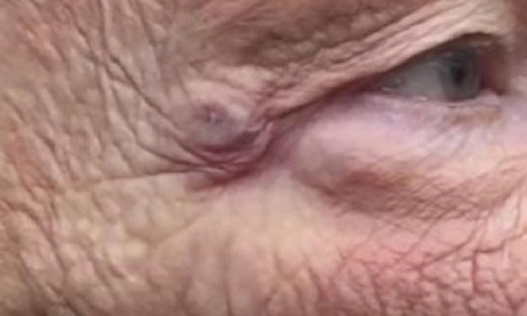 Tak vypadá akné na tváři, kterého si léta nevšímáte. Motivace, proč si každý den čistit pleť