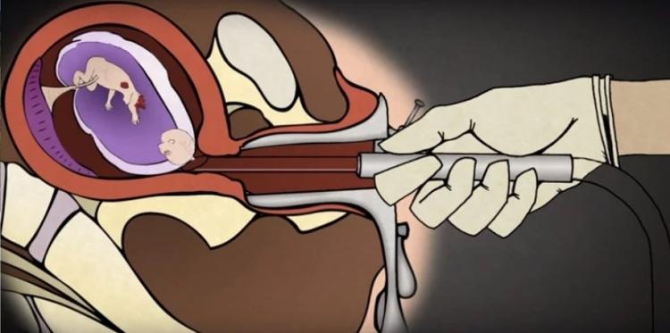 Jednoduchá animace ukazuje, jak ve skutečnosti probíhá potrat. Co si o tom myslíte vy?