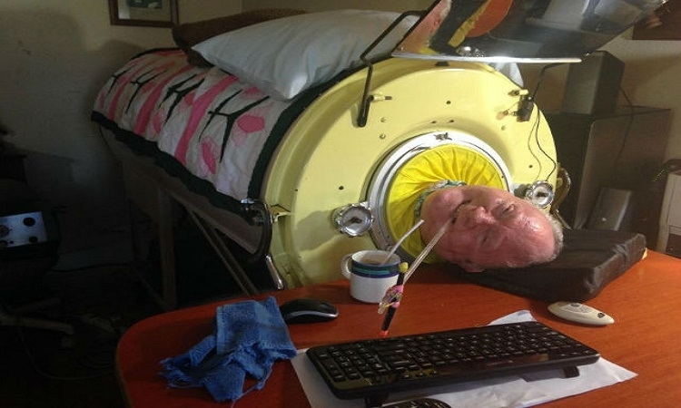 Tento muž je jedním z 10, kteří žijí s tzv. železnými plícemi